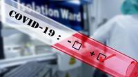 Lék favipiravir z Japonska na covid-19 bude dostupný v řádu dní, potvrdil Vojtěch - anotační foto